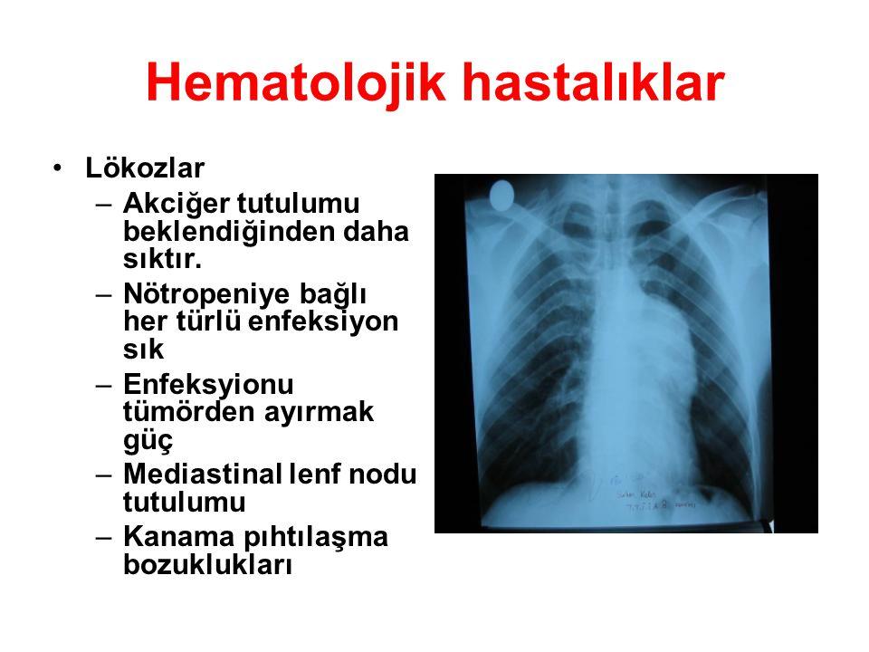 Hematolojik hastalıklar