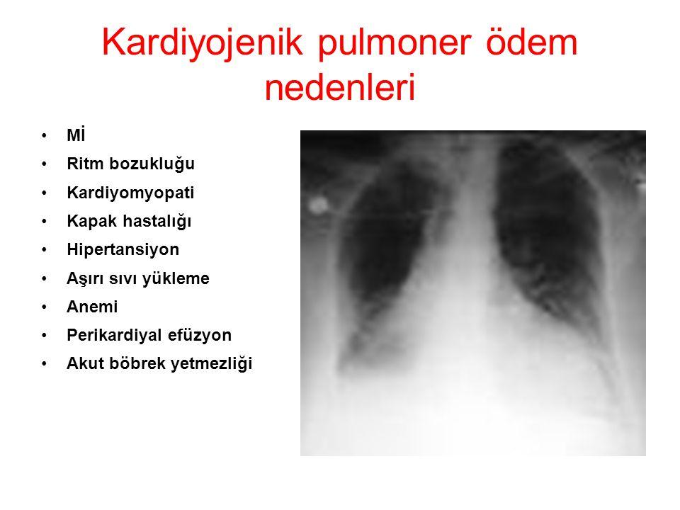 Kardiyojenik pulmoner ödem nedenleri