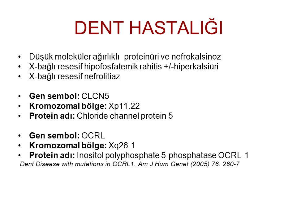 DENT HASTALIĞI Düşük moleküler ağırlıklı proteinüri ve nefrokalsinoz