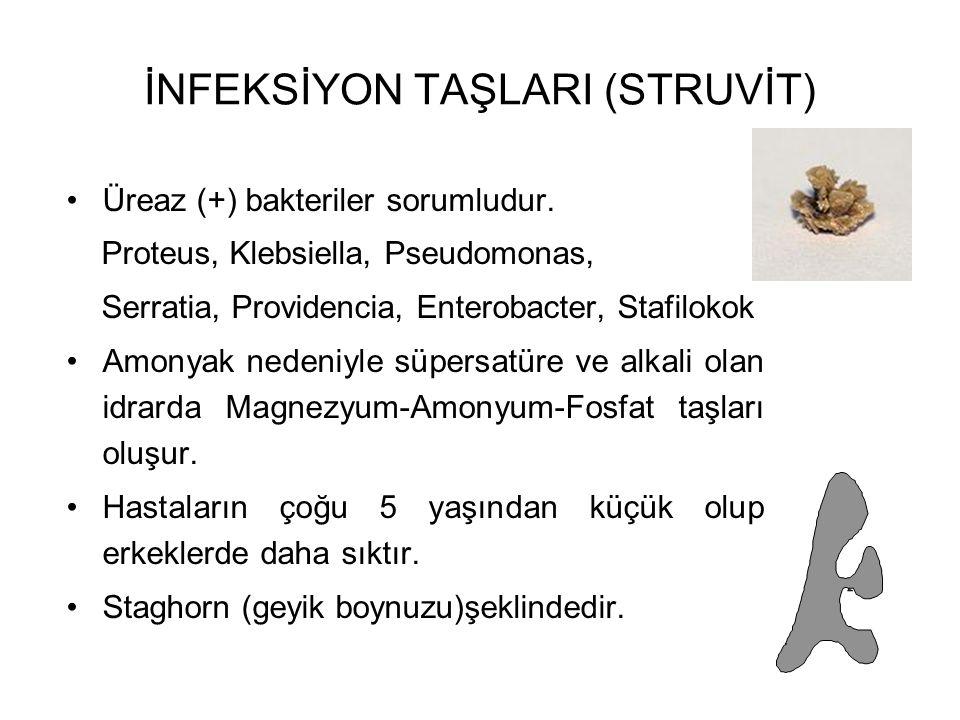 İNFEKSİYON TAŞLARI (STRUVİT)