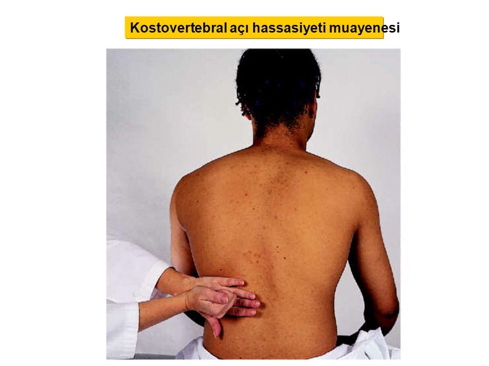 Kostovertebral açı hassasiyeti muayenesi