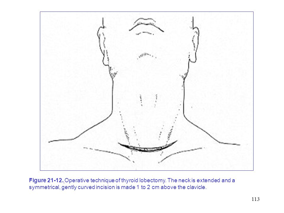 Figure 21-12. Operative technique of thyroid lobectomy
