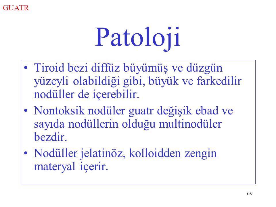GUATR Patoloji. Tiroid bezi diffüz büyümüş ve düzgün yüzeyli olabildiği gibi, büyük ve farkedilir nodüller de içerebilir.