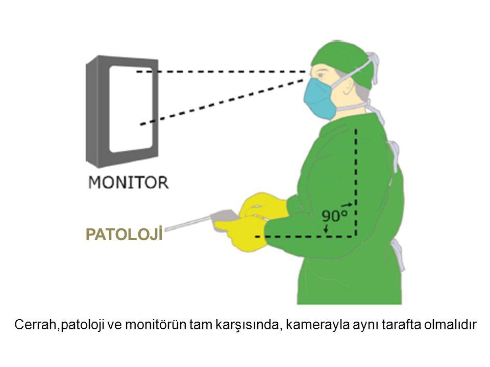 PATOLOJİ Cerrah,patoloji ve monitörün tam karşısında, kamerayla aynı tarafta olmalıdır