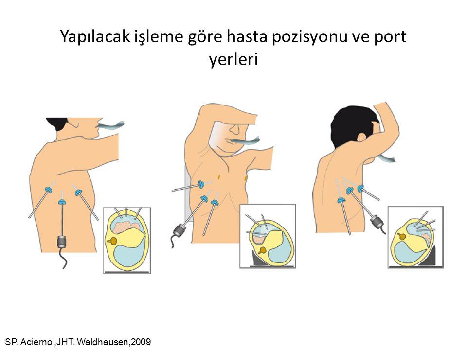 Yapılacak işleme göre hasta pozisyonu ve port yerleri