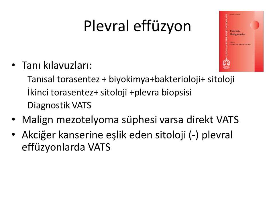 Plevral effüzyon Tanı kılavuzları: