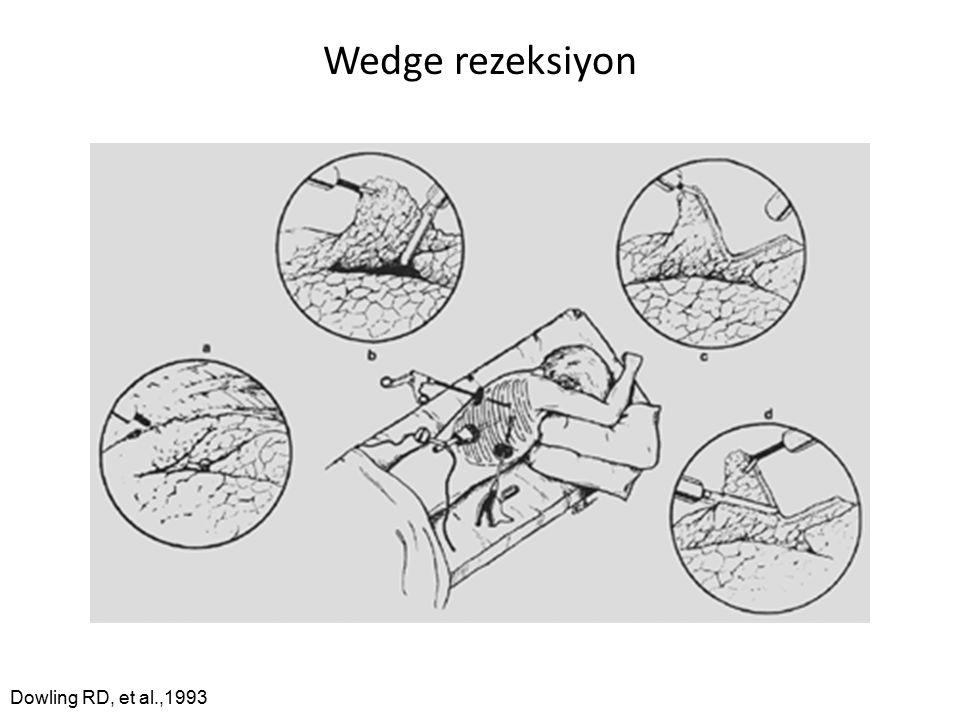 Wedge rezeksiyon Dowling RD, et al.,1993
