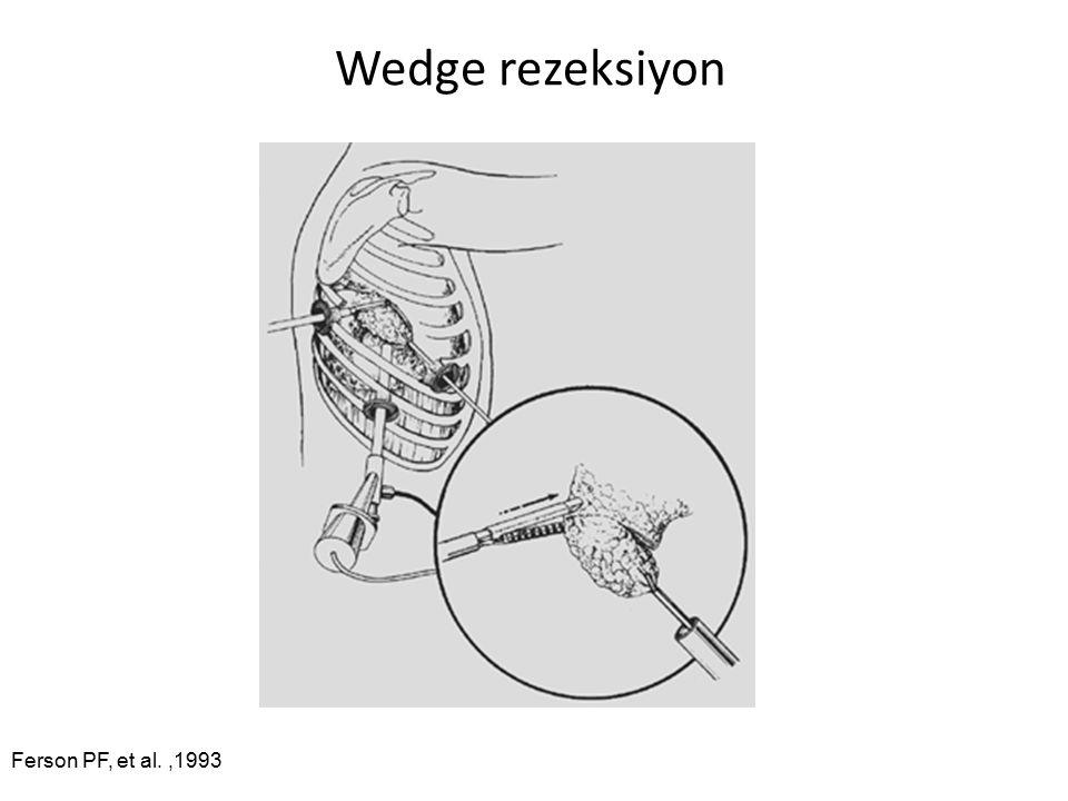 Wedge rezeksiyon Ferson PF, et al. ,1993