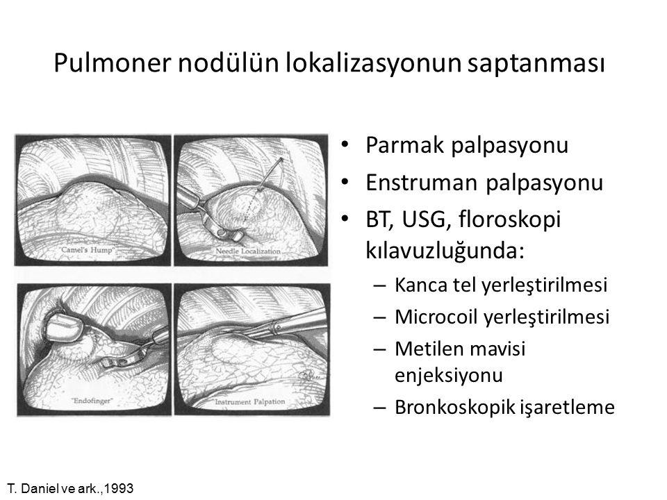 Pulmoner nodülün lokalizasyonun saptanması
