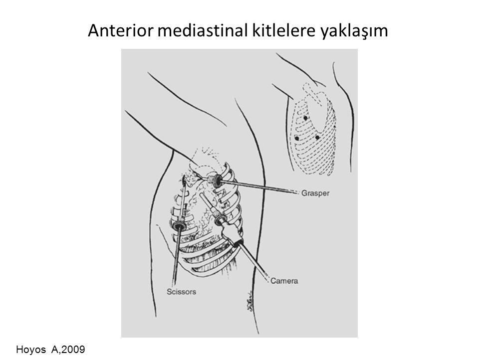 Anterior mediastinal kitlelere yaklaşım