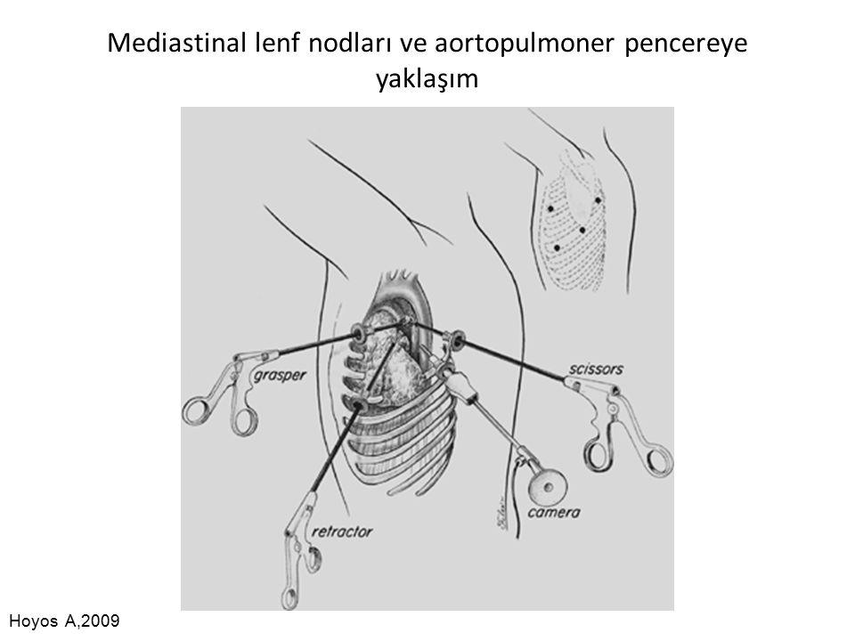 Mediastinal lenf nodları ve aortopulmoner pencereye yaklaşım