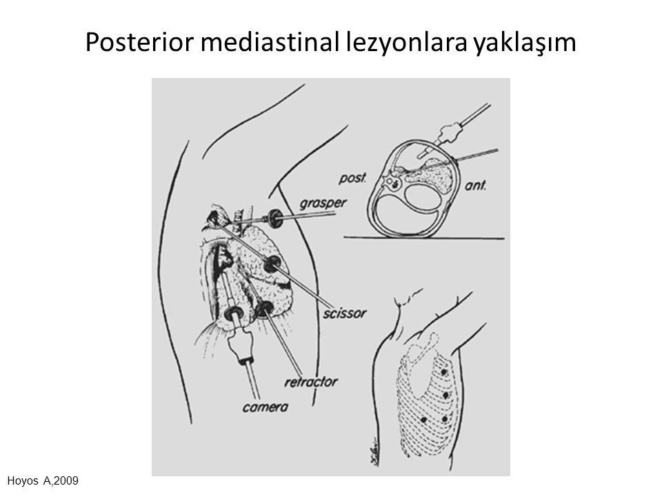 Posterior mediastinal lezyonlara yaklaşım