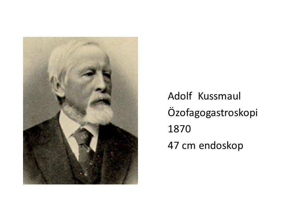 Adolf Kussmaul Özofagogastroskopi 1870 47 cm endoskop
