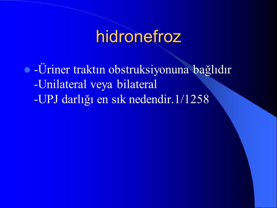 hidronefroz -Üriner traktın obstruksiyonuna bağlıdır -Unilateral veya bilateral -UPJ darlığı en sık nedendir.1/1258.