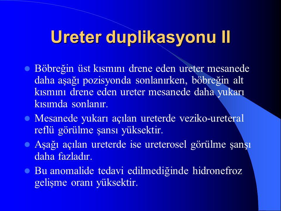 Ureter duplikasyonu II