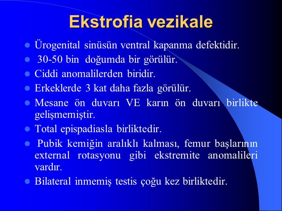 Ekstrofia vezikale Ürogenital sinüsün ventral kapanma defektidir.