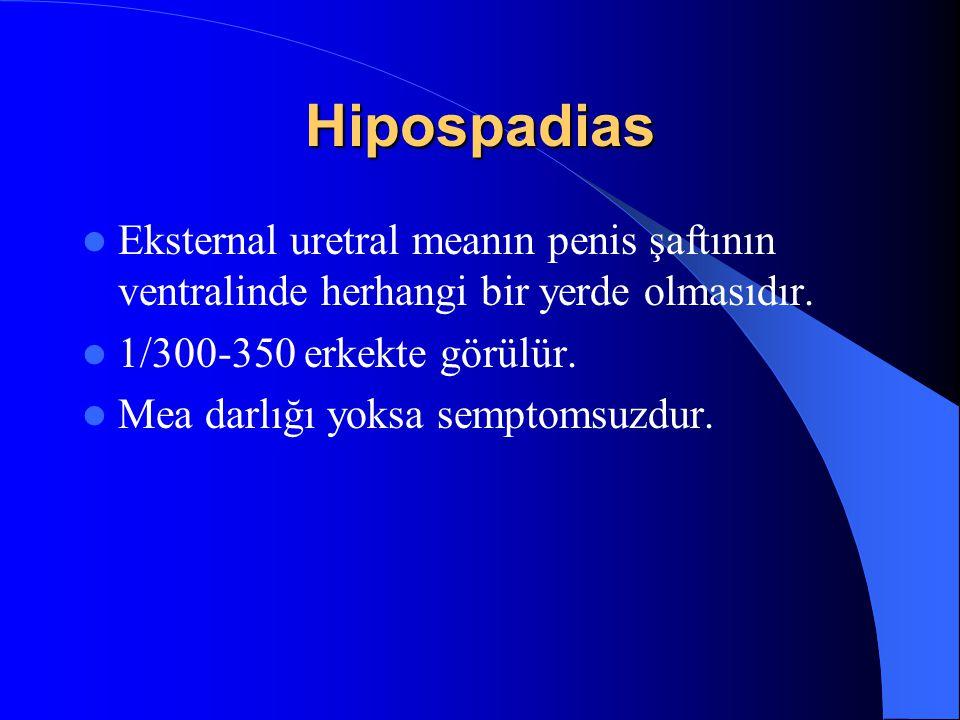 Hipospadias Eksternal uretral meanın penis şaftının ventralinde herhangi bir yerde olmasıdır. 1/300-350 erkekte görülür.