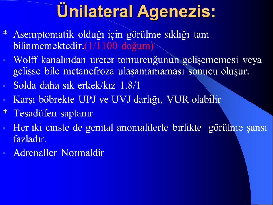 Ünilateral Agenezis: * Asemptomatik olduğı için görülme sıklığı tam bilinmemektedir.(1/1100 doğum)