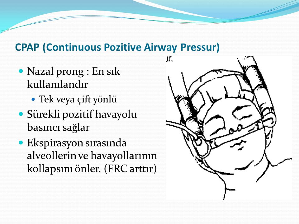 CPAP (Continuous Pozitive Airway Pressur)