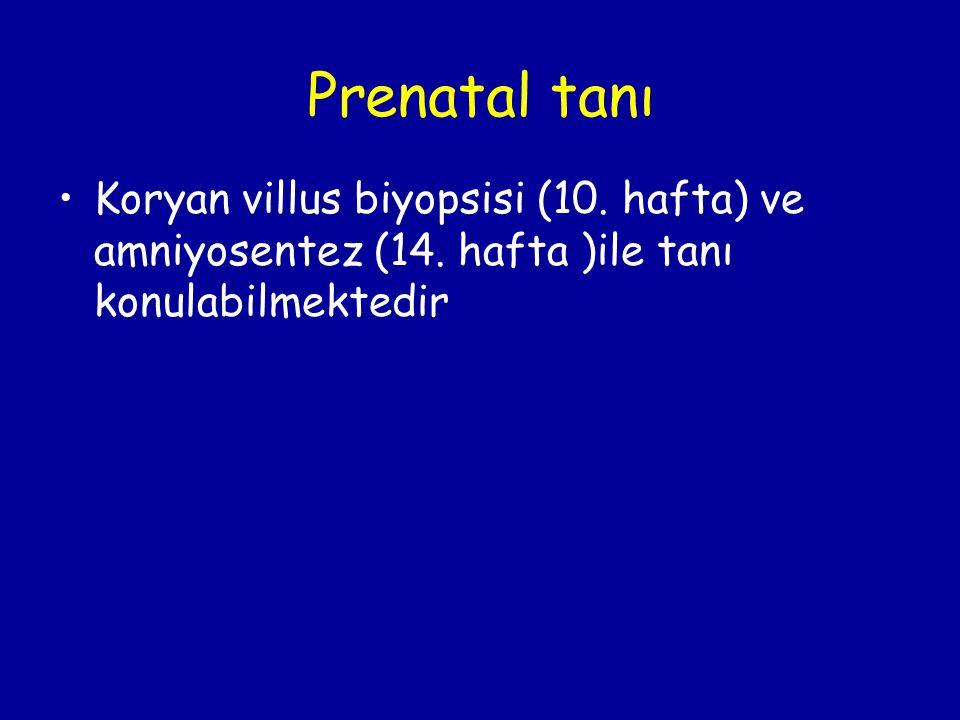 Prenatal tanı Koryan villus biyopsisi (10. hafta) ve amniyosentez (14.