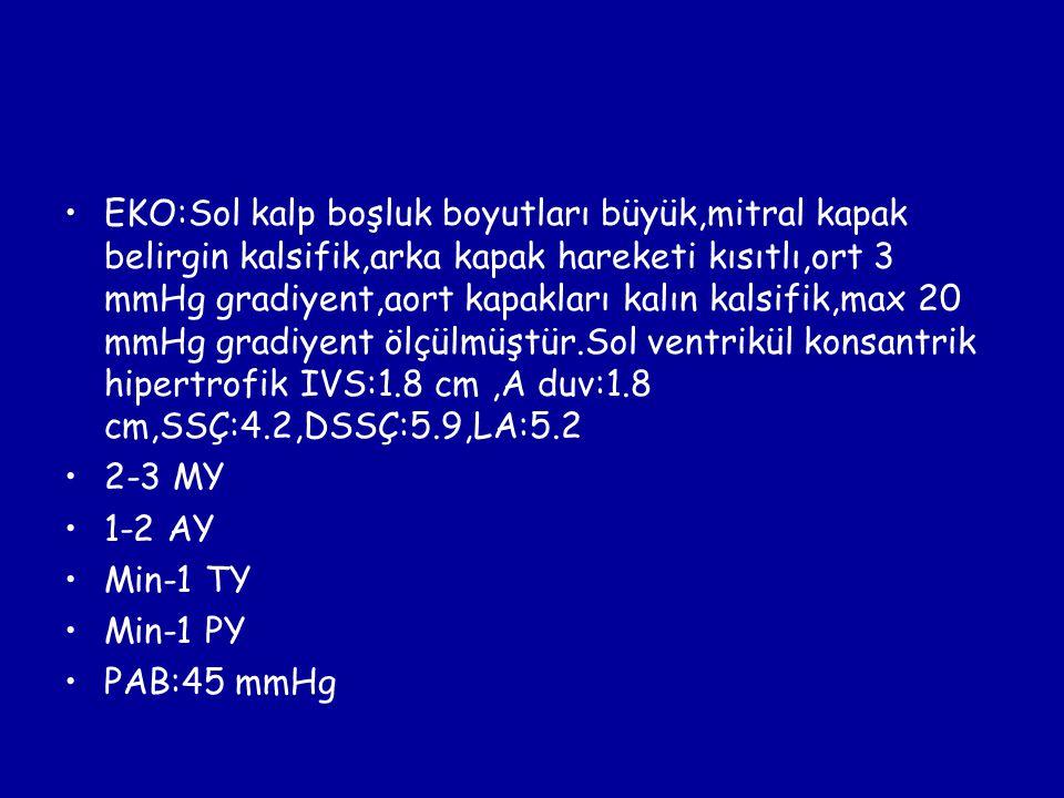 EKO:Sol kalp boşluk boyutları büyük,mitral kapak belirgin kalsifik,arka kapak hareketi kısıtlı,ort 3 mmHg gradiyent,aort kapakları kalın kalsifik,max 20 mmHg gradiyent ölçülmüştür.Sol ventrikül konsantrik hipertrofik IVS:1.8 cm ,A duv:1.8 cm,SSÇ:4.2,DSSÇ:5.9,LA:5.2
