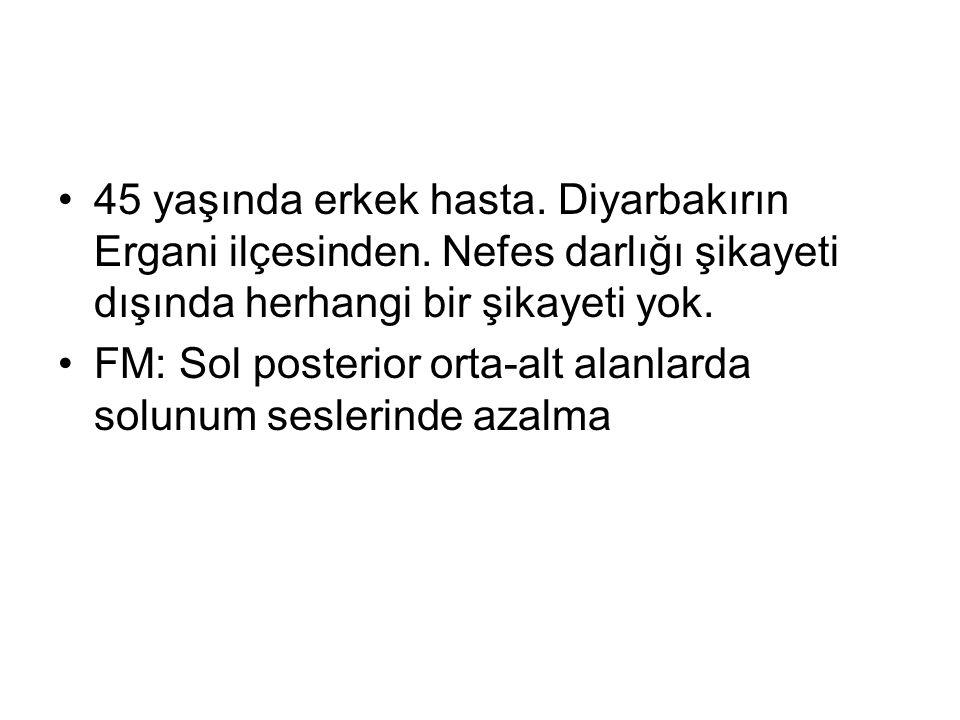 45 yaşında erkek hasta. Diyarbakırın Ergani ilçesinden