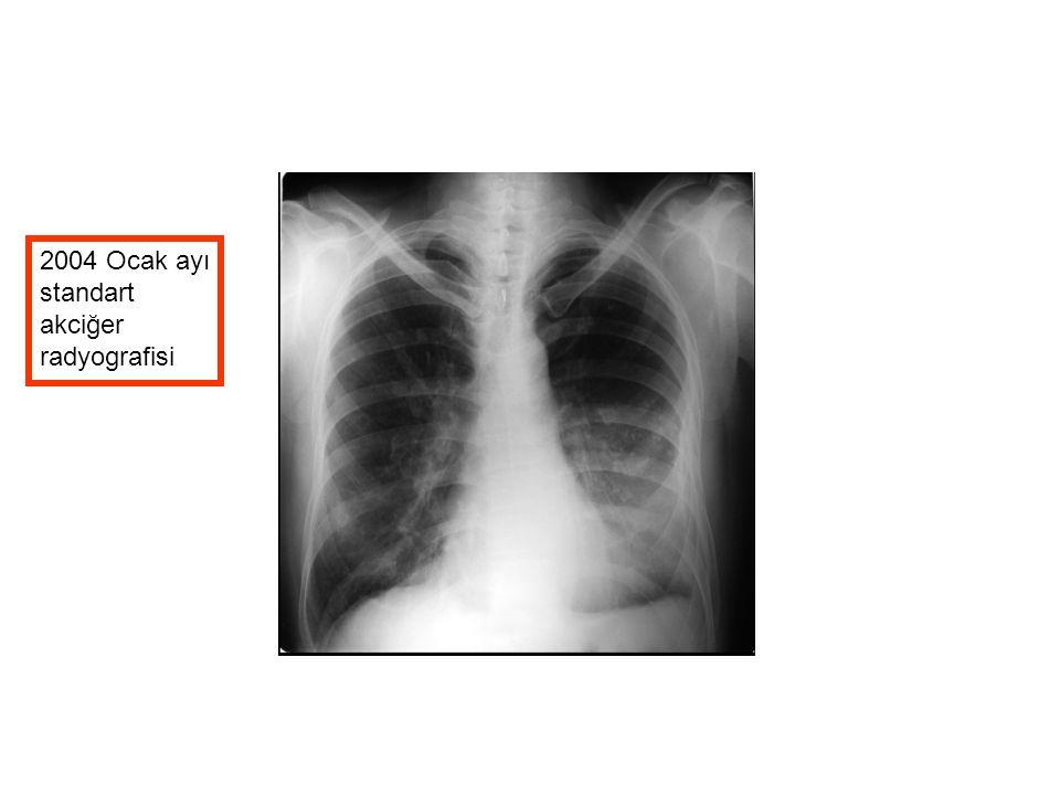 2004 Ocak ayı standart akciğer radyografisi