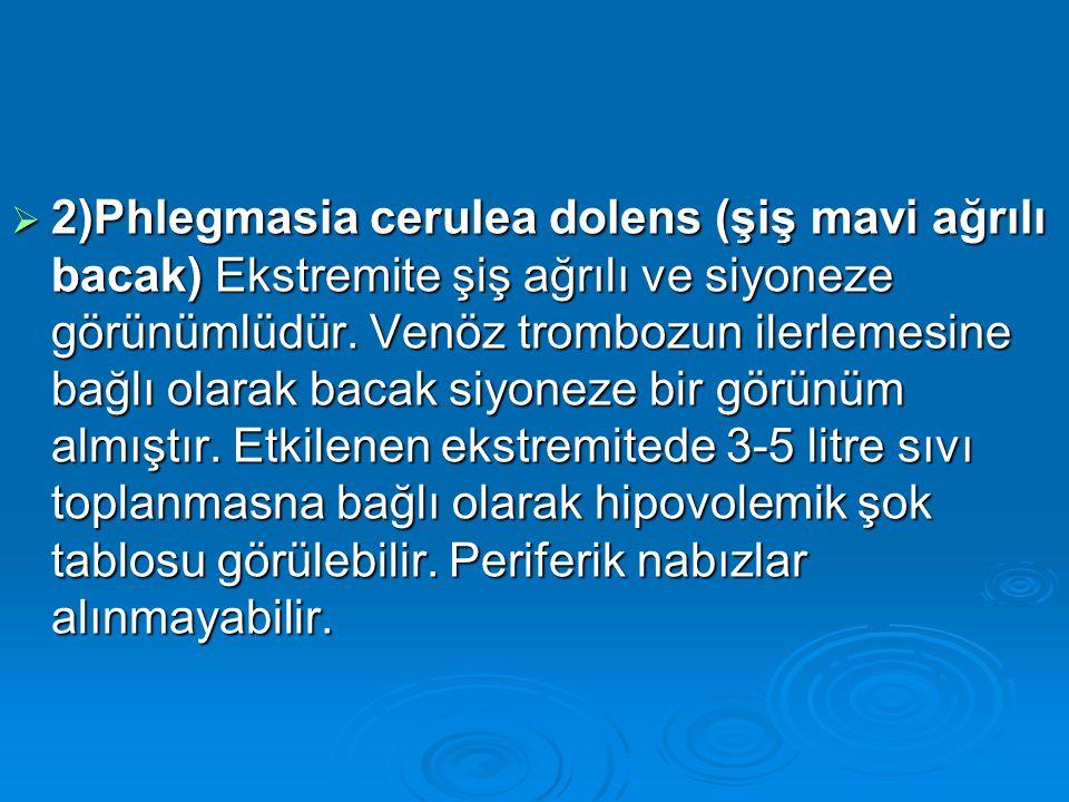 2)Phlegmasia cerulea dolens (şiş mavi ağrılı bacak) Ekstremite şiş ağrılı ve siyoneze görünümlüdür.