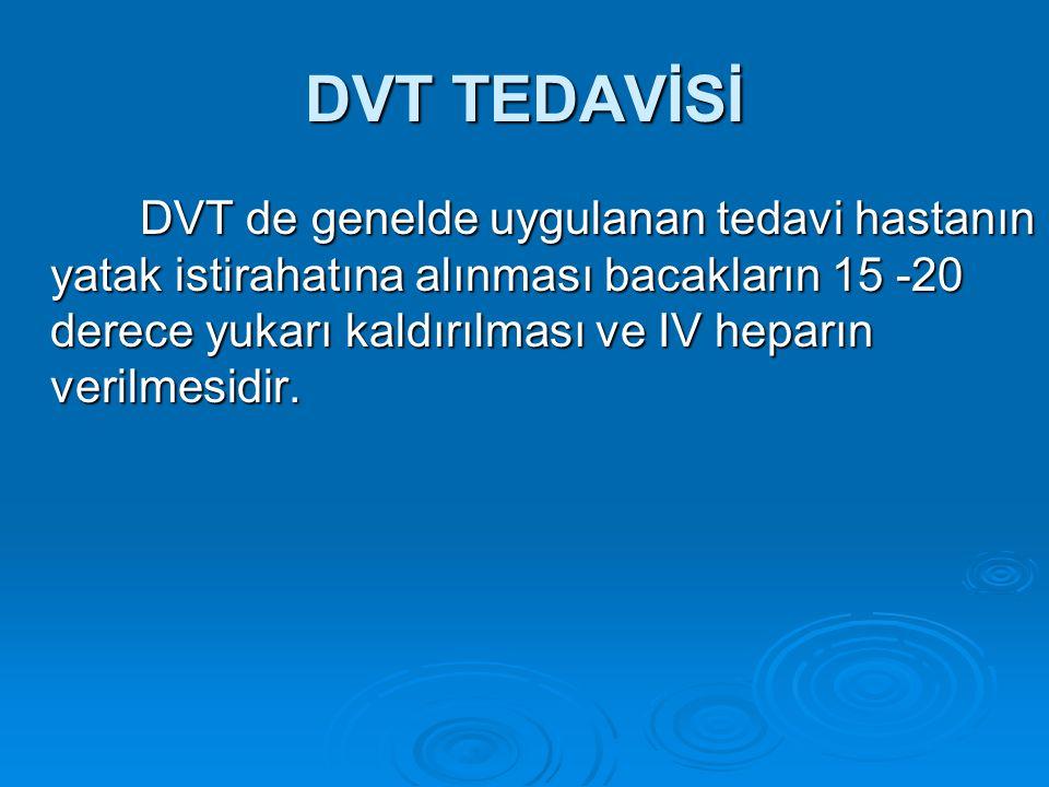 DVT TEDAVİSİ