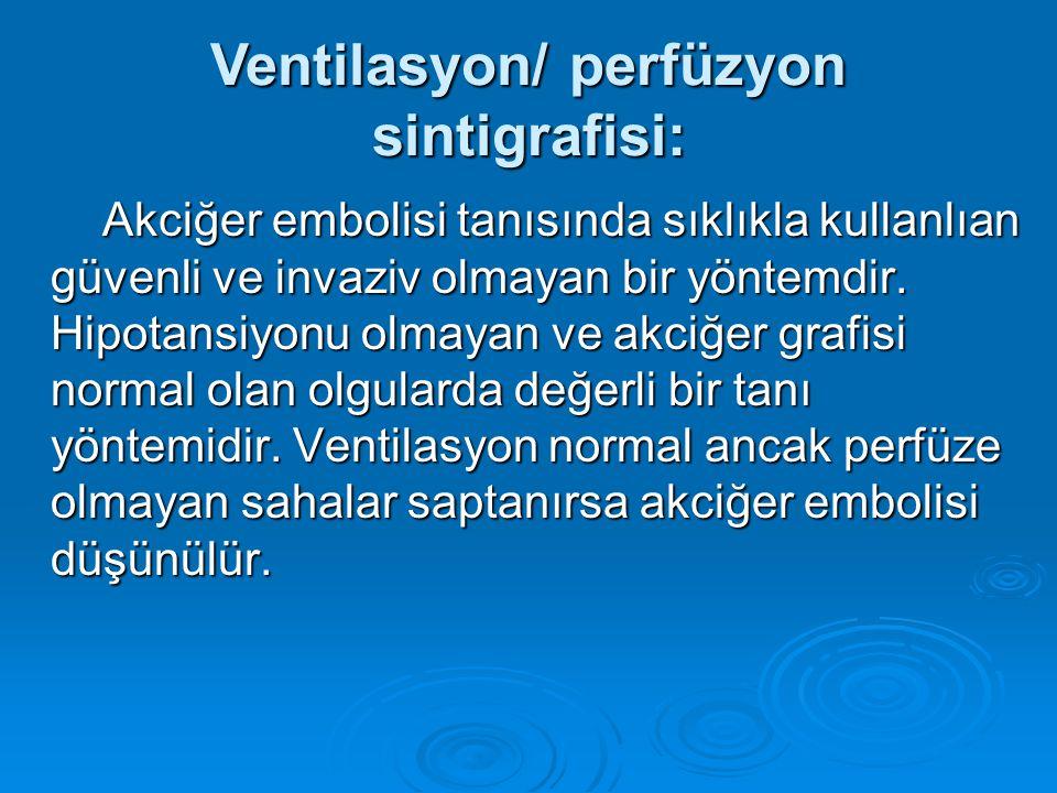 Ventilasyon/ perfüzyon sintigrafisi: