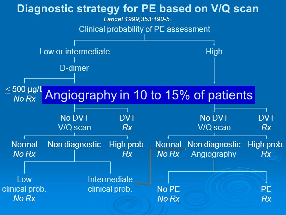 Diagnostic strategy for PE based on V/Q scan