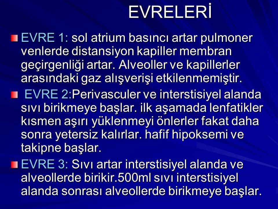 EVRELERİ
