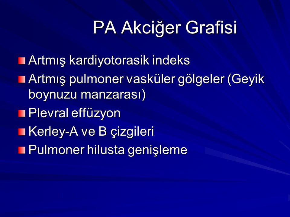 PA Akciğer Grafisi Artmış kardiyotorasik indeks