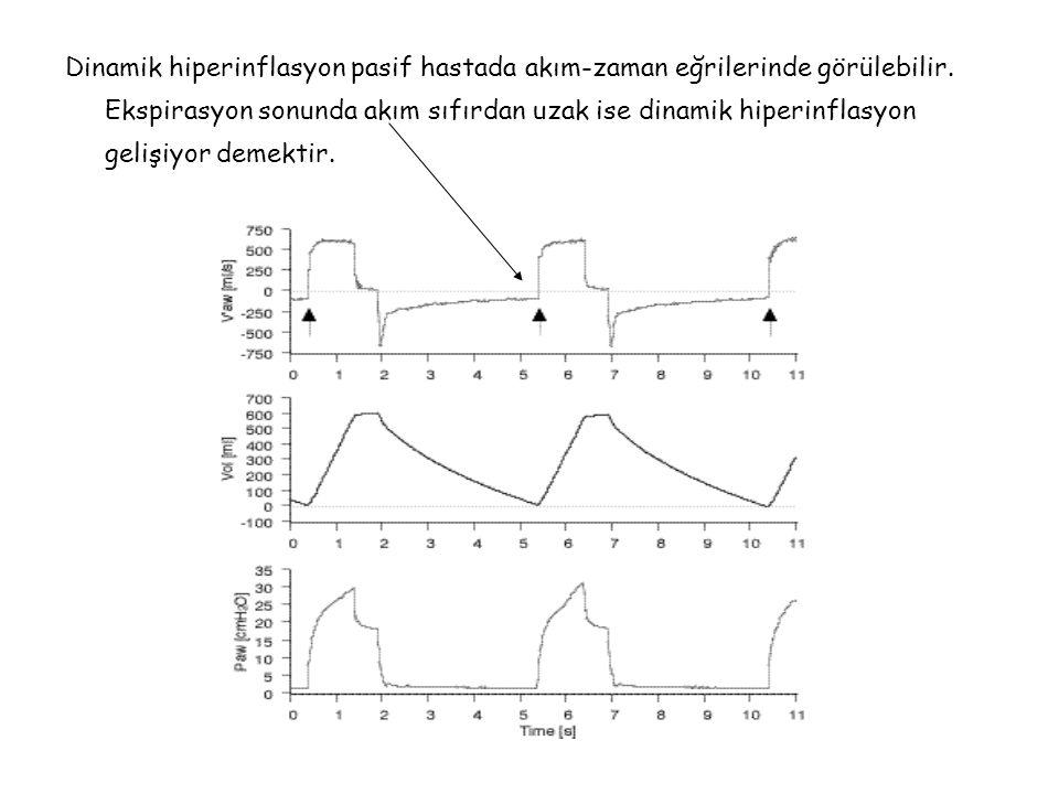 Dinamik hiperinflasyon pasif hastada akım-zaman eğrilerinde görülebilir.