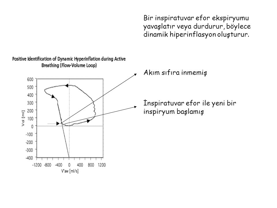 Bir inspiratuvar efor ekspiryumu yavaşlatır veya durdurur, böylece dinamik hiperinflasyon oluşturur.