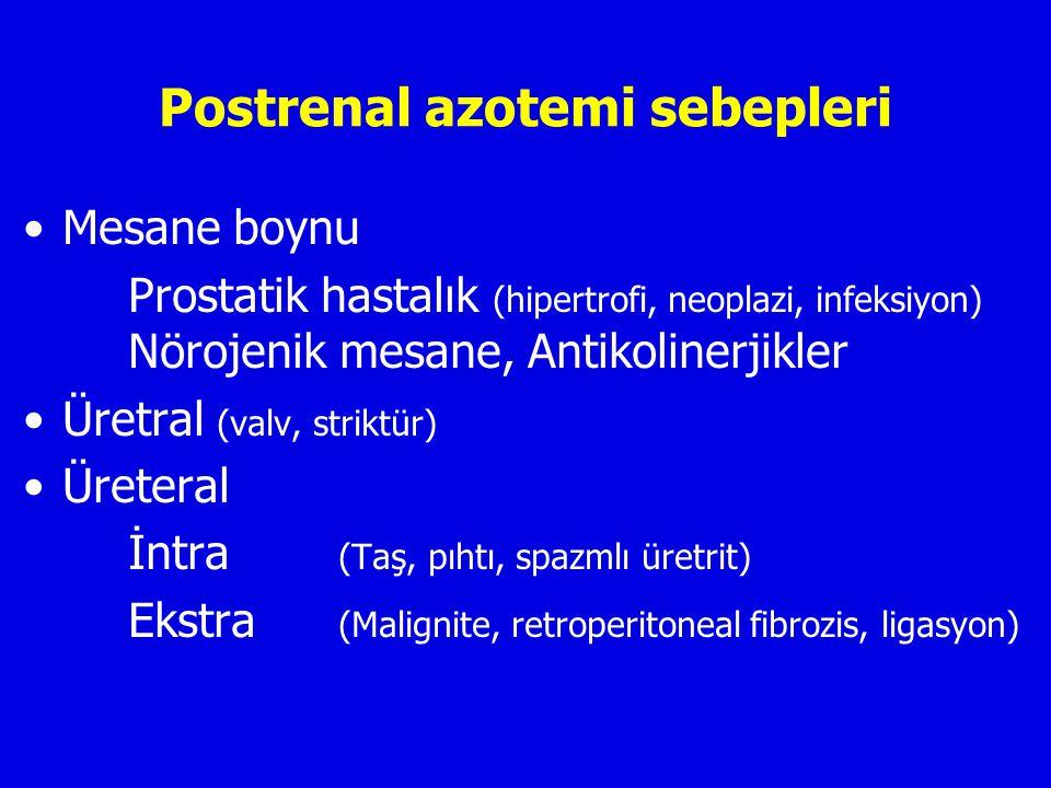 Postrenal azotemi sebepleri
