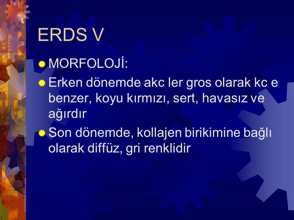 ERDS V MORFOLOJİ: Erken dönemde akc ler gros olarak kc e benzer, koyu kırmızı, sert, havasız ve ağırdır.