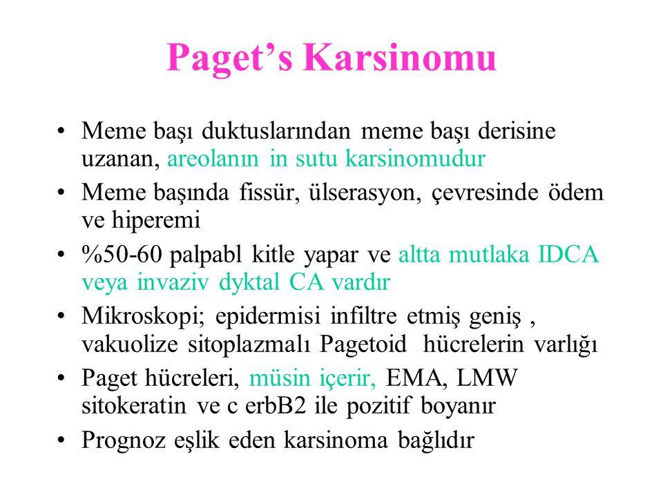 Paget's Karsinomu Meme başı duktuslarından meme başı derisine uzanan, areolanın in sutu karsinomudur.