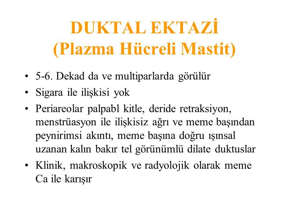 DUKTAL EKTAZİ (Plazma Hücreli Mastit)