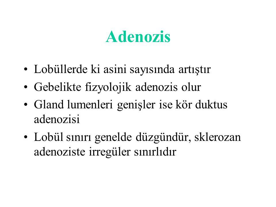Adenozis Lobüllerde ki asini sayısında artıştır