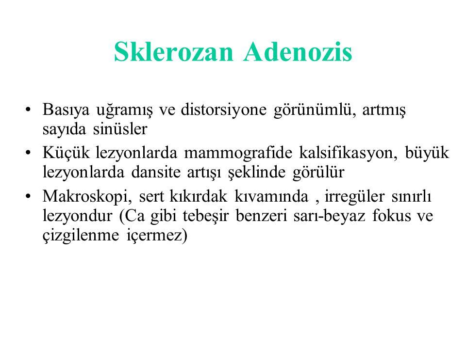 Sklerozan Adenozis Basıya uğramış ve distorsiyone görünümlü, artmış sayıda sinüsler.