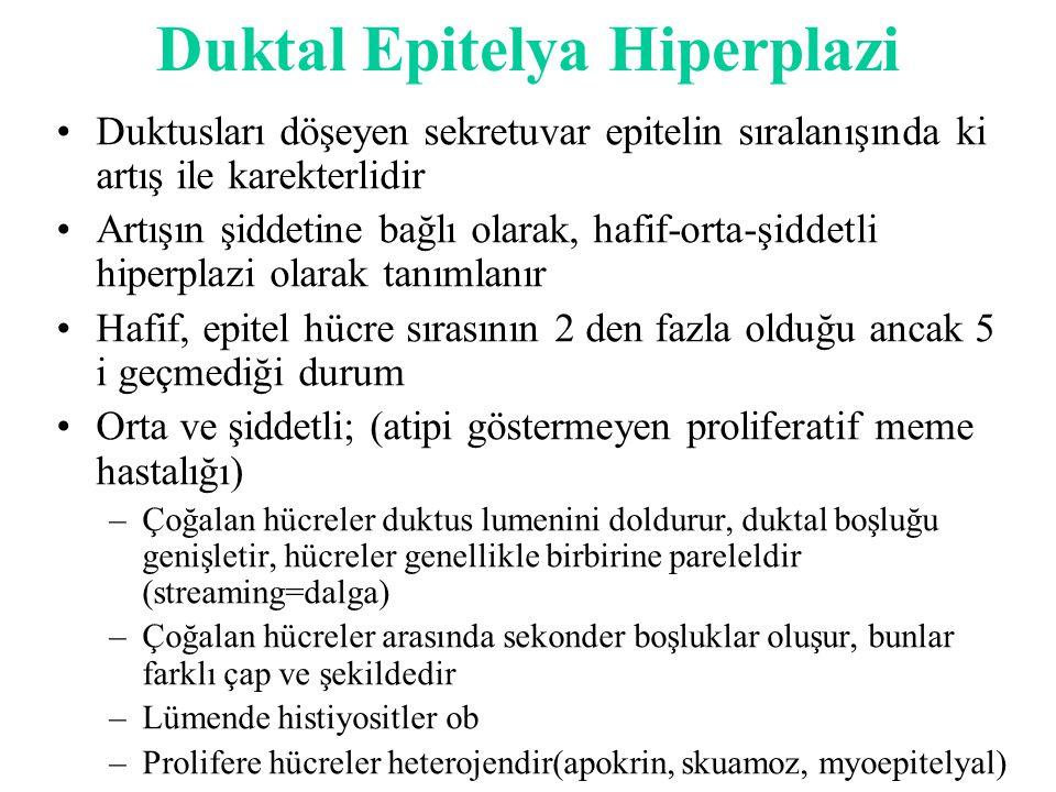 Duktal Epitelya Hiperplazi