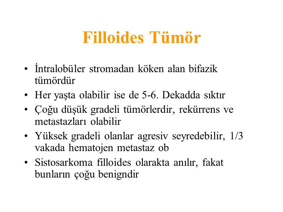 Filloides Tümör İntralobüler stromadan köken alan bifazik tümördür