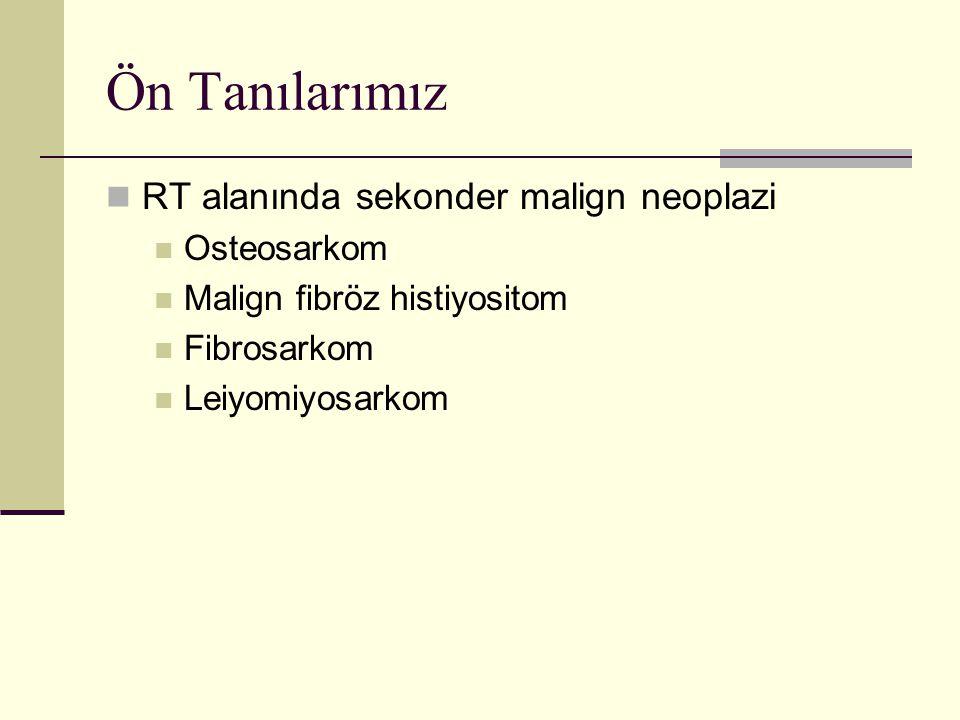 Ön Tanılarımız RT alanında sekonder malign neoplazi Osteosarkom