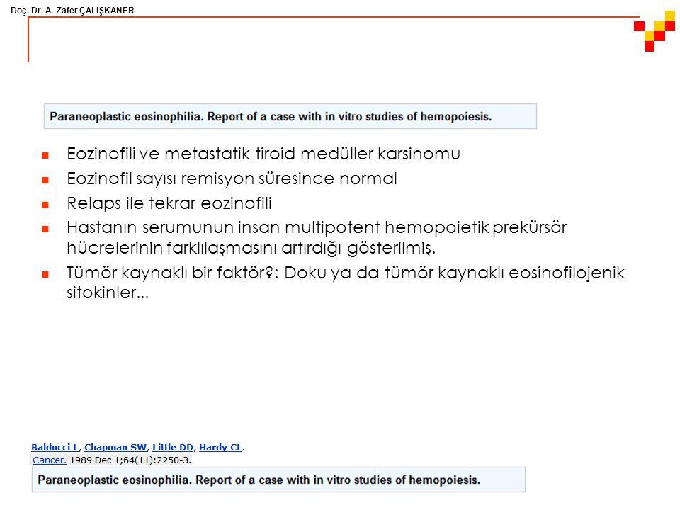 Eozinofili ve metastatik tiroid medüller karsinomu