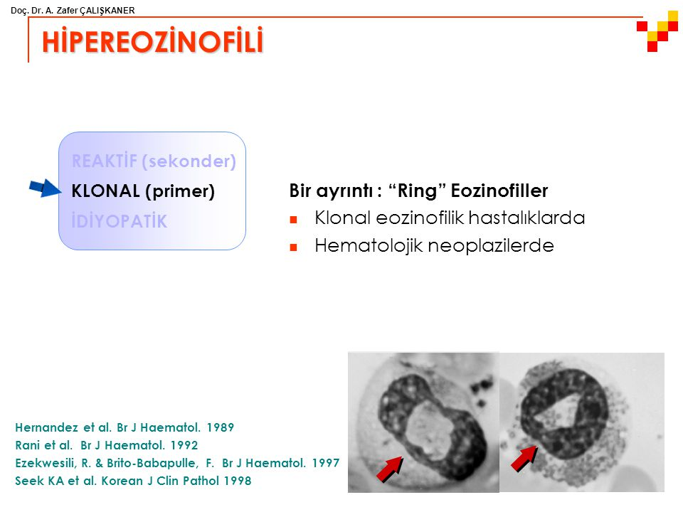 HİPEREOZİNOFİLİ Bir ayrıntı : Ring Eozinofiller