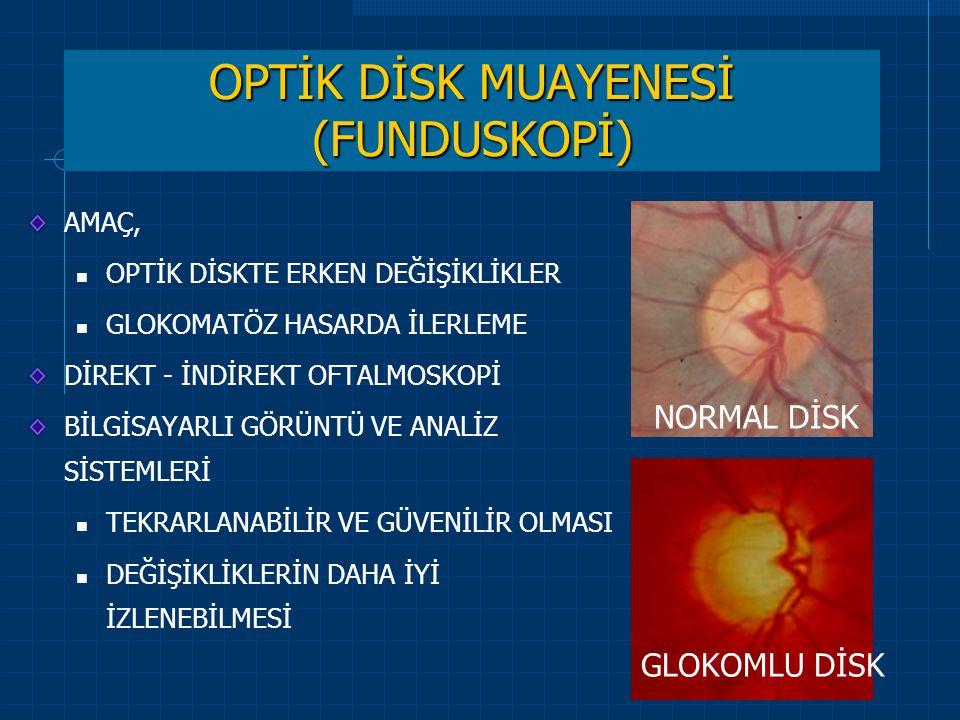OPTİK DİSK MUAYENESİ (FUNDUSKOPİ)