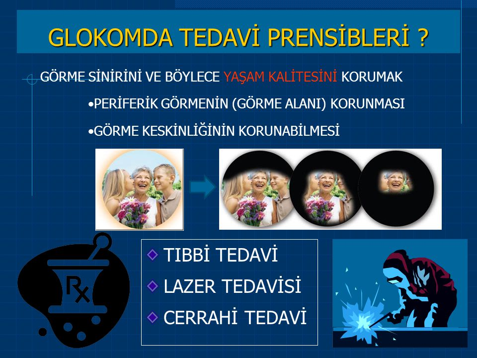 GLOKOMDA TEDAVİ PRENSİBLERİ