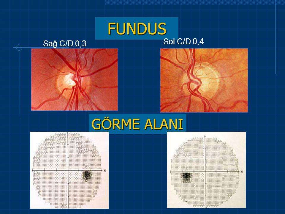 FUNDUS Sol C/D 0,4 Sağ C/D 0,3 GÖRME ALANI 45