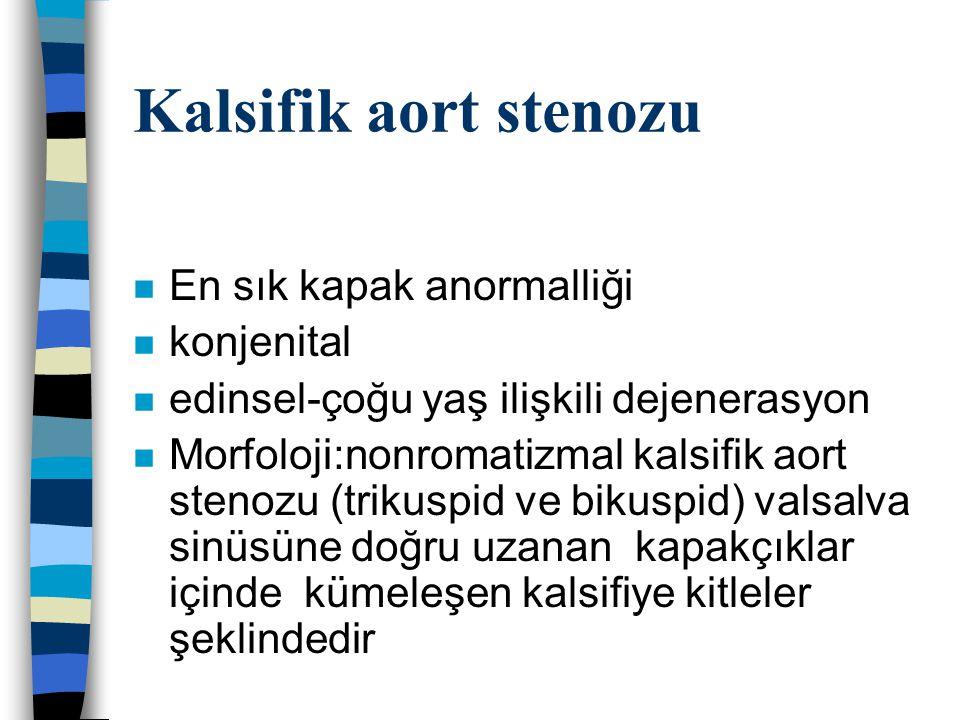 Kalsifik aort stenozu En sık kapak anormalliği konjenital